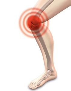 Knee cold weather arthritis pain aches physio osteopathy
